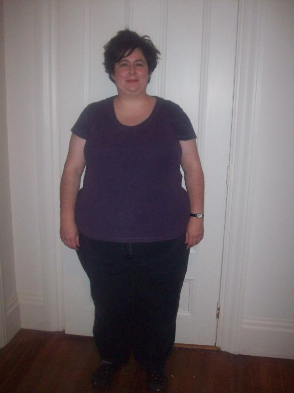 With Video Weight Loss Success Without The Surgery Wareham